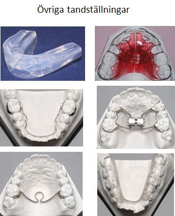 ovriga-tandstallningar2