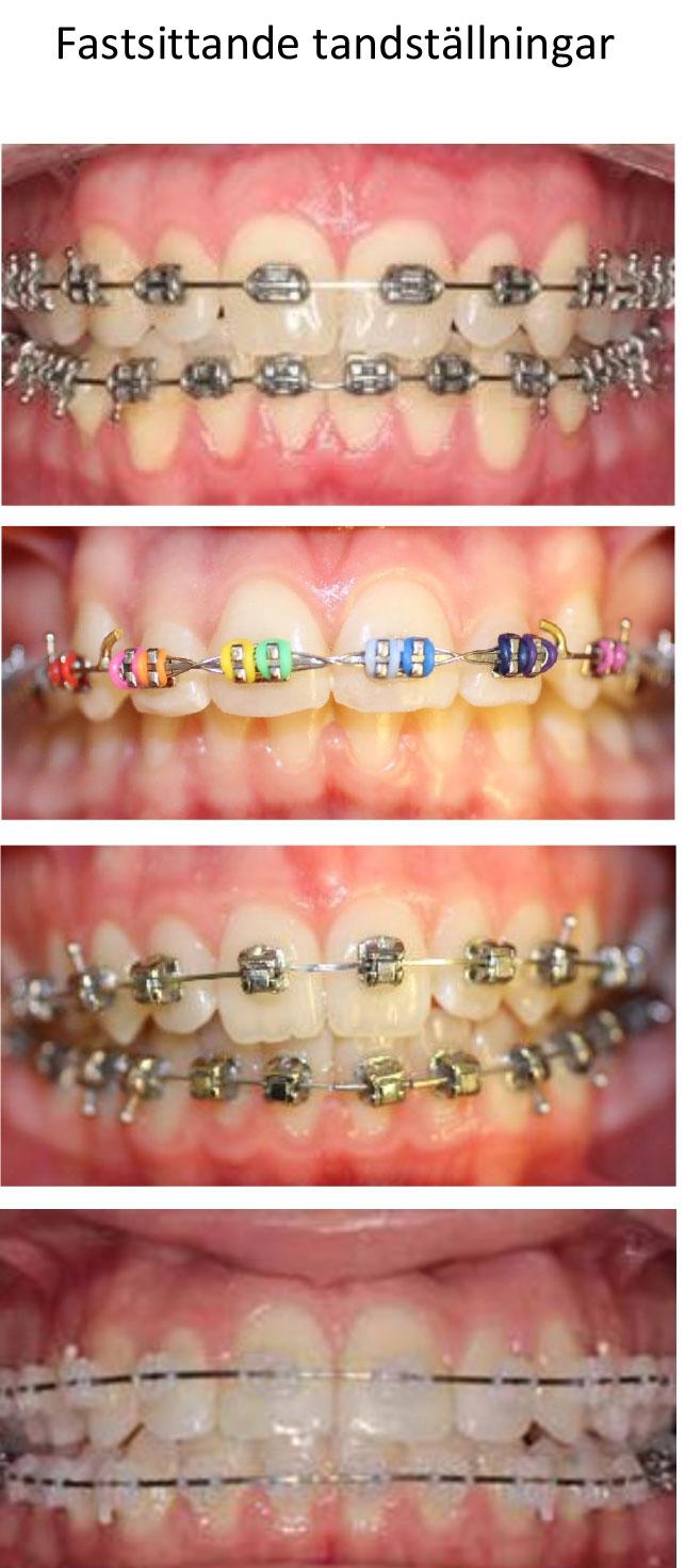 tandställningar_2